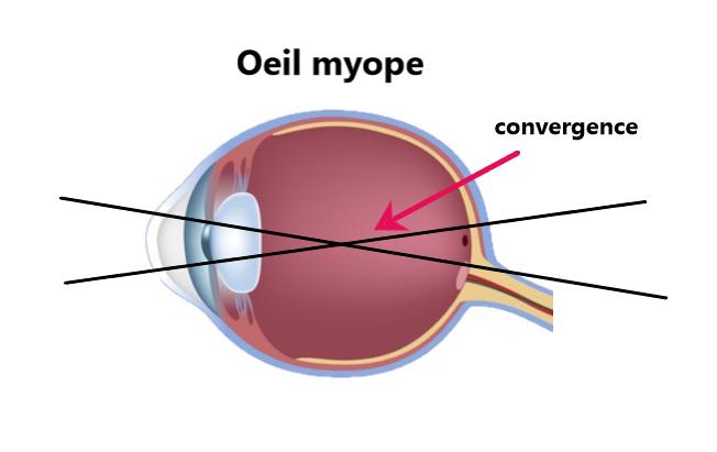 œil myope myopie vision floue