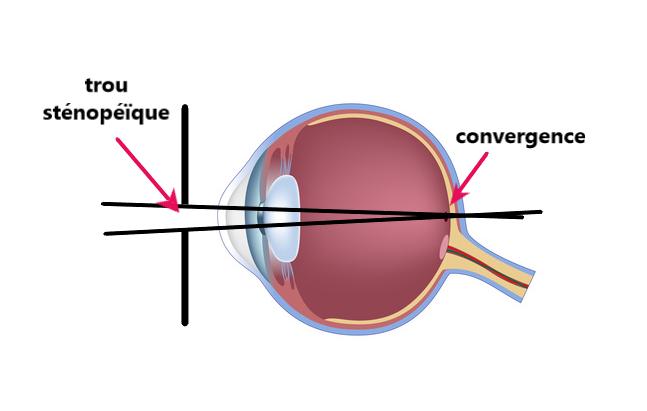 œil ophtalmo lunettes sténopeïques